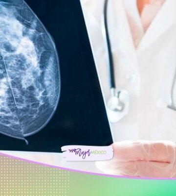 ¿Cuánto cuesta atender el cáncer de mama en México?