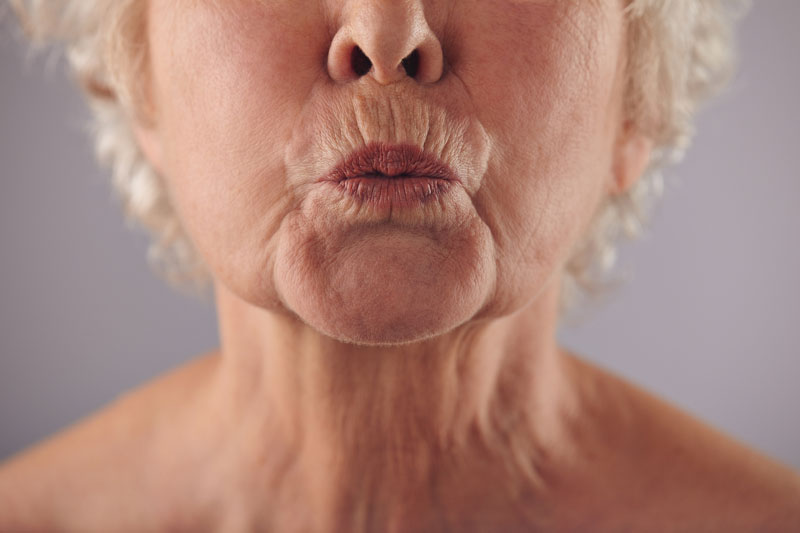 ¿Cómo eliminar las arrugas del surco nasogeniano?