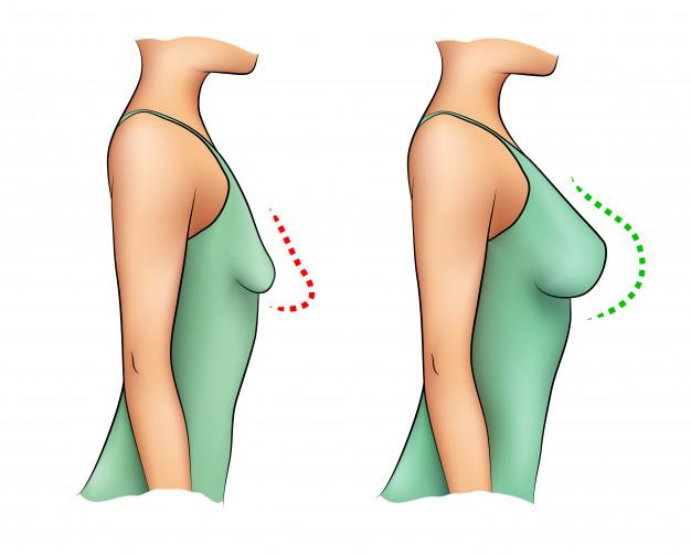 ¿Cómo hacer crecer los senos naturalmente?